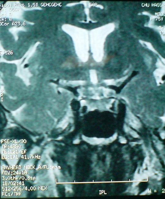 Figure Figure 5-Paralysie complète du nerf oculomoteur ...